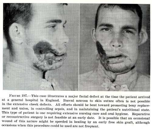 Hitam Putih Foto Korban Perang Dunia II ( Soft DP )
