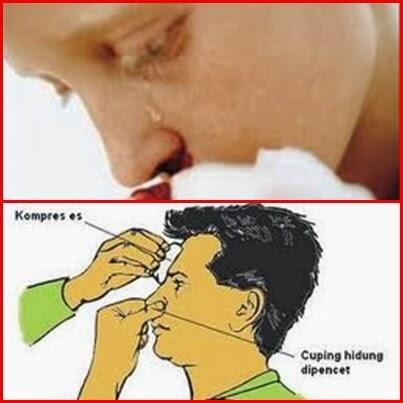 Penyebab Keluar Darah Dari Hidung ( Mimisan ) Dan Cara ...