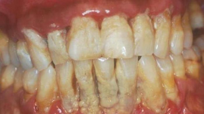 Malas Ke Dokter Ini Cara Alami Bersihkan Karang Gigi Kaskus