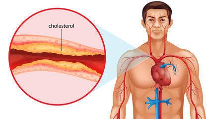 Mengungkap Penyebab Penyakit Jantung di Usia Muda