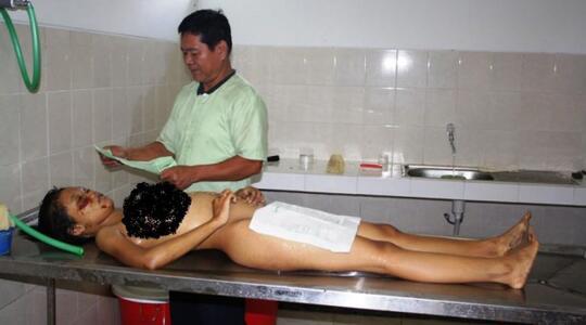 Wanita Hamil 7 Bulan, Dibantai di Warung Es Ponorogo