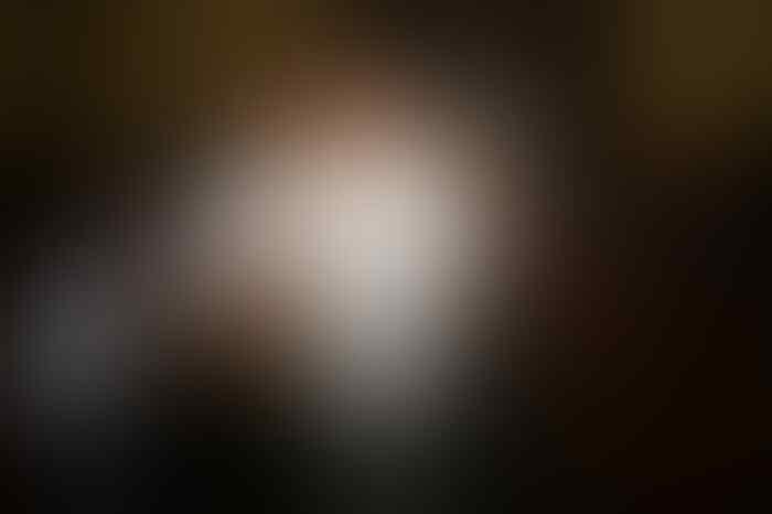 Kecelakaan, tiang listrik, dan luka lecet kecil Setya Novanto