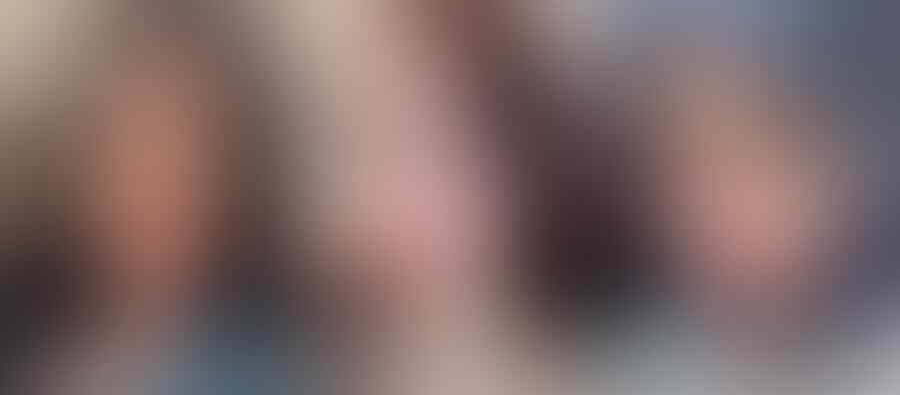 Beredar Foto Lucinta Luna Pertama Kali Oplas Payudara