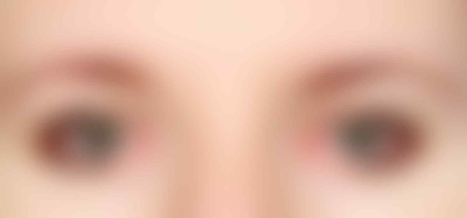 Segera Stop, Ini 7 Tanda Skincare Tak Cocok dengan Kulitmu