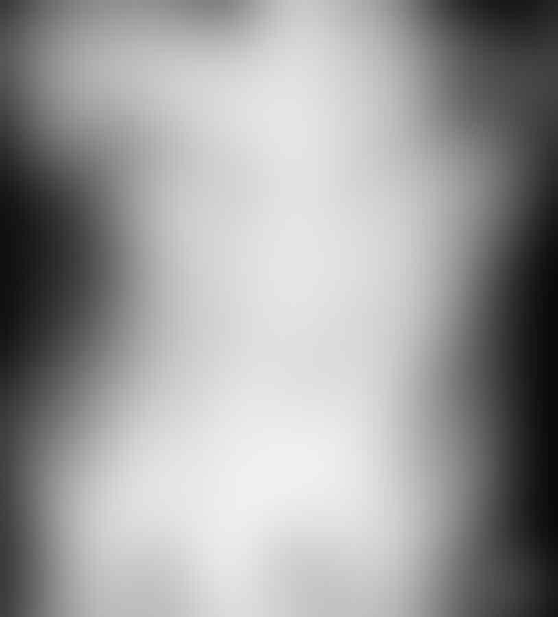 [Video] Dokter Cabut Dildo Nyangkut dari Anus Pria Ini Pakai Alat Baru
