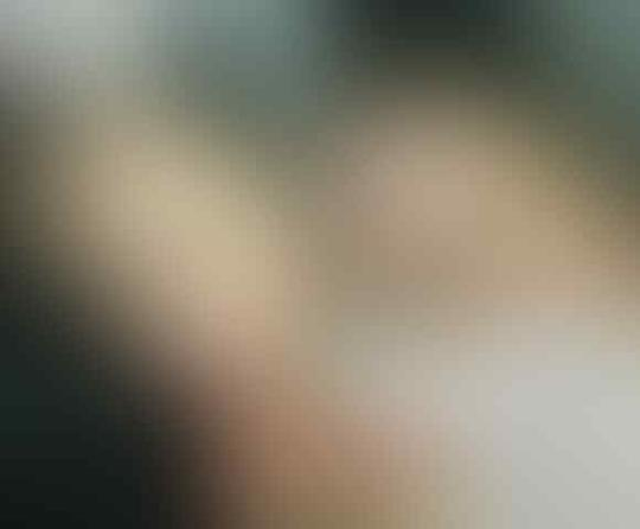 Viral Curhat Sedih Pejuang Acne Ditolak Cowok Gegara Jerawatan