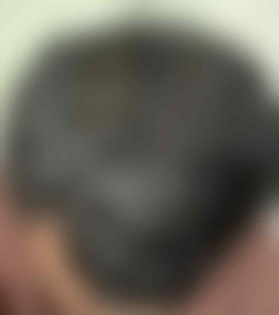 [REBORN] [HELP] Rambut Gua Rontok, hampir Botak - Part 1