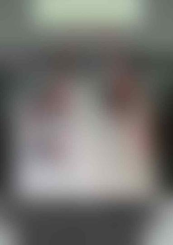 Viral Perbandingan Paru-paru Pasien COVID-19, Divaksin Vs Tidak Divaksin
