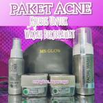 acne-series-msglow