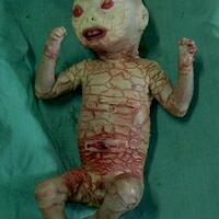 sakit-genetik-bernama-ichthyosis-jenis-harlequin