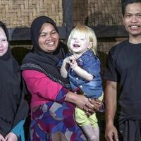 kisah-anak-albino-asal-ciburuy-hampir-mogok-sekolah-stop-bullying