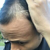 reborn-help-rambut-gua-rontok-hampir-botak