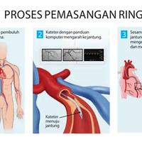 mengenal-perkembangan-teknologi-di-bidang-kesehatan-indonesia-selama-6-bulan-terakhir