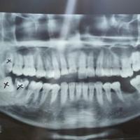 share-yang-punya-pengalaman-operasi-gigi-impaksi-gigi-tumbuh-miring