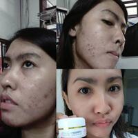 gan-sist-mending-ke-klinik-kecantikan-atau-nyobain-pake-skincare