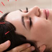 efek-samping-pengobatan-tradisional-akupuntur