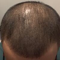 reborn-help-rambut-gua-rontok-hampir-botak---part-1