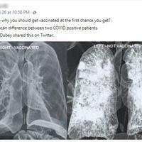 benarkah-kondisi-paru-paru-penerima-vaksin-covid-19-akan-terbebas-dari-bercak