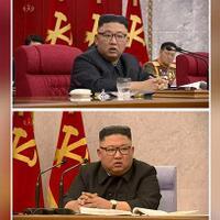 kepala-kim-jong-un-ada-bintik-hijau-dan-pakai-perban-sakit-apa