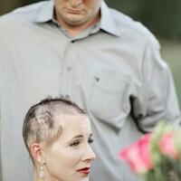 melihat-momen-mengharukan-seorang-suami-bersama-istrinya-yang-mengidap-kanker