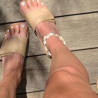 masih-ingat-sandal-kesehatan-yang-jadul-itu-sekarang-lagi-jadi-tren-fashion