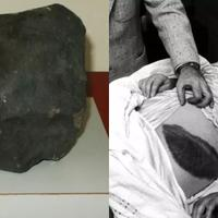 inilah-satu-satunya-manusia-yang-pernah-ketiban-batu-meteor-bekas-lukanya-ituloh