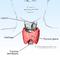 pengobatan-herbal-thyroid--gondok