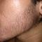 group-brewok-quotbrengozerquot-forum-resmi-berbagi-informasi-progress-hair-facial---part-1