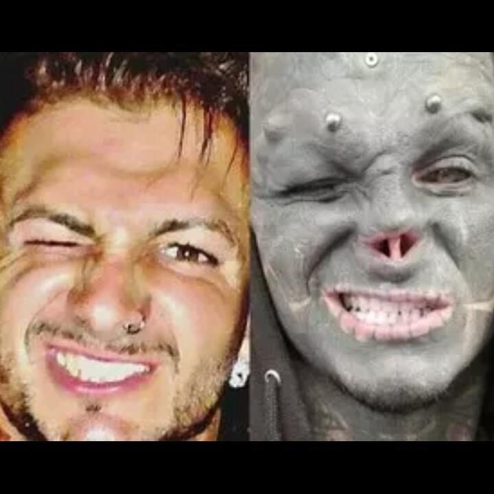 Pria Ini Rela Motong Hidung dan Bibirnya Demi Mirip Black Alien