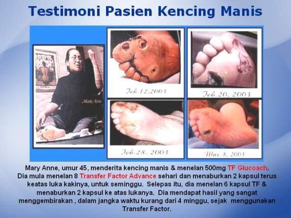 GRATIS... UNTUK ANTI BODY (Sistem Imun Tubuh)
