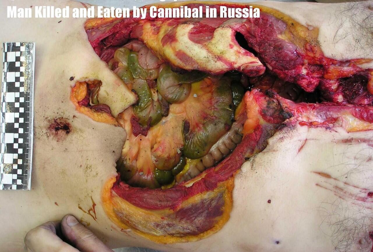 Victim of cannibal