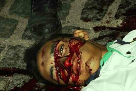 20 YO Male Killed In Mexico