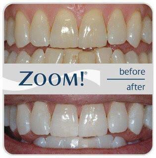 6 Cara Ampuh Membuat Gigi Jadi Lebih Putih Kaskus