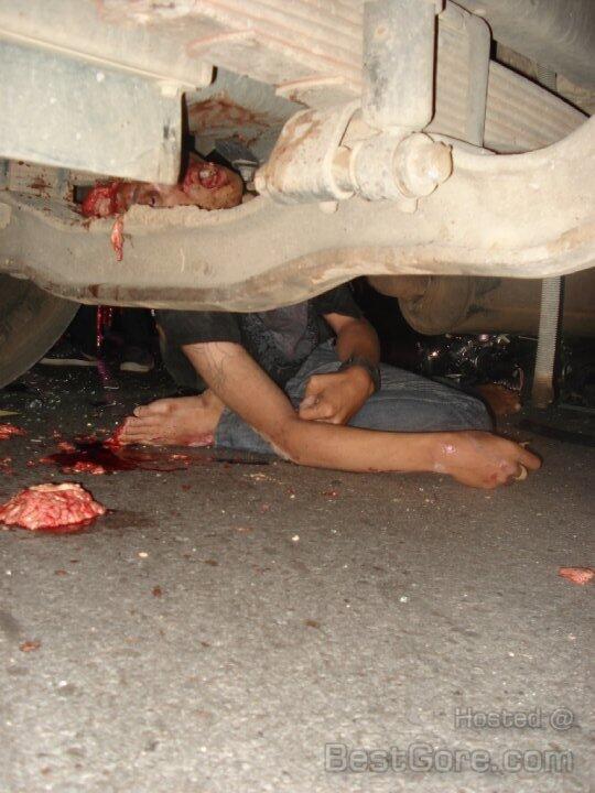 Hit By Truck part II