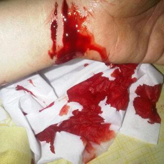 tangan ane gan :'(