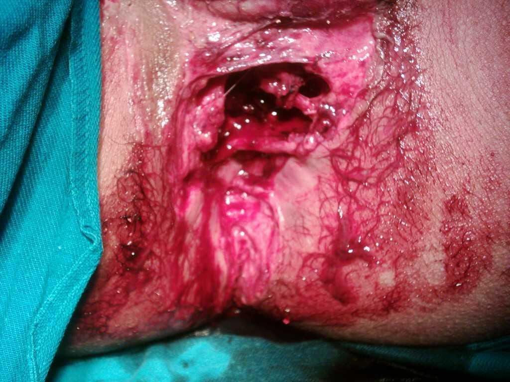 review : Asidosis tubulus renalis