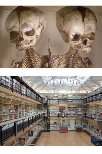 Inilah Museum-museum Medis Paling Aneh Sedunia