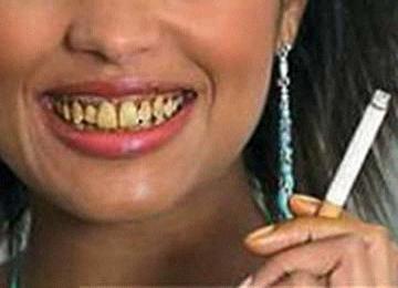 Cara Menghilangkan Gudel Tai Gigi Plak Gigi Gigi Kuning Mambu Masuk