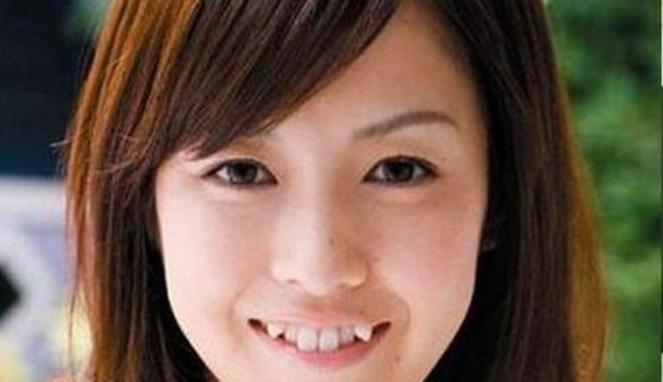 Wanita Jepang tidak suka Gigi yang Rapi