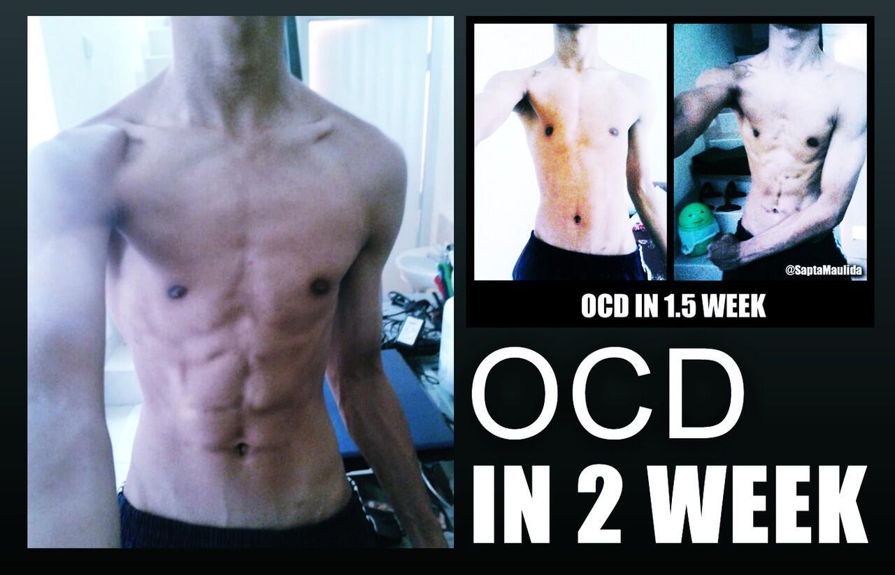 TESTIMONIAL DIET OCD (Corbuzier) dari ane (17 tahun) KONTRA MASUK !
