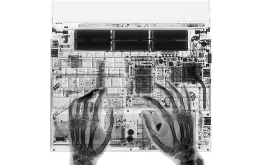 ~๑.Keindahan Hasil Karya Fotografi X-Ray.๑~ [CEKIDOT]