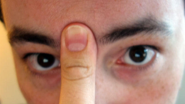 Redakan Hidung Tersumbat Dengan Lidah Dan Jari Dalam 20 Detik