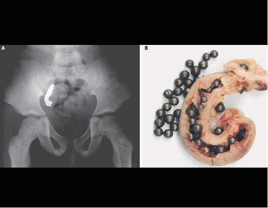 100 Penemuan Yang Tidak Wajar Dalam X-Ray
