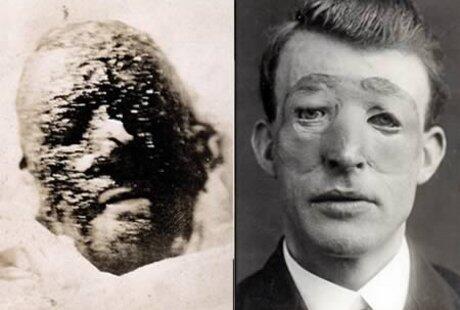~๑๑.Inilah Wajah-wajah Operasi Plastik Paling Pertama di Dunia.๑๑~