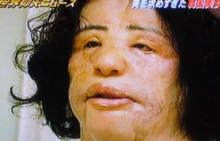 Wajah Jadi Menyeramkan Karena Operasi Plastik