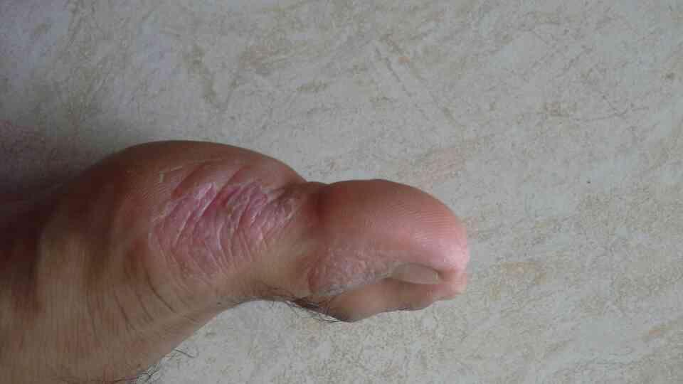 Help Me Penyakit Eksim Eczema Dermatitis Kaskus