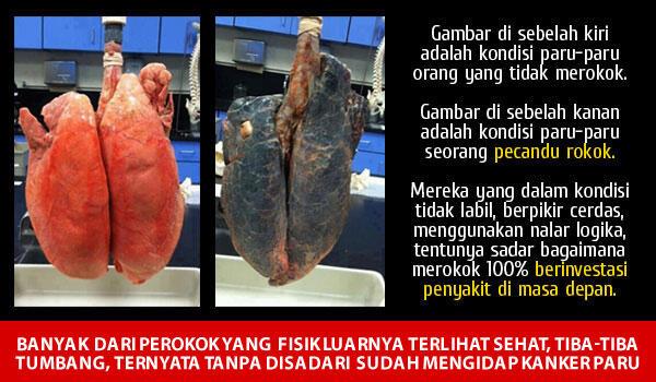 Laki Bisa Berhenti Merokok Itu Hebat, Mantab, Keren, Top Abis! [FIGHTER!]