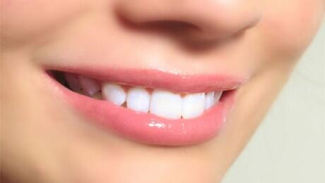 7 Cara Memutihkan Gigi Secara Natural Kaskus