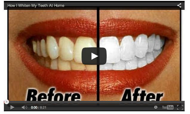 Cara Memutihkan Gigi Kaskus