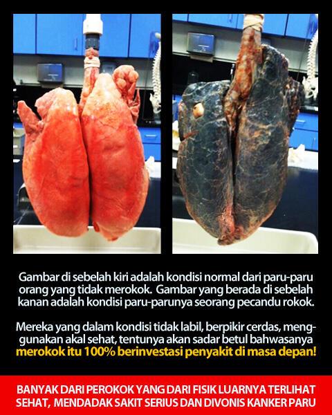 [FACTS] Mereka Menyesal TELAT BERHENTI MEROKOK — Lelaki Berhenti Merokok Itu HUEEBAT!